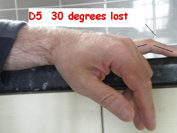Dupuytrens Contracture Left Hand D2