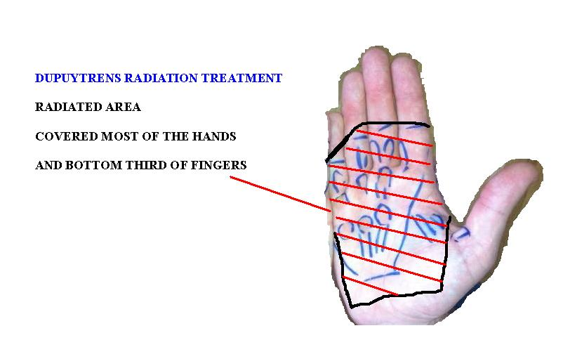 dupuytren-contracture-radiation
